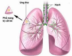 Máy 'ngửi' hơi thở phát hiện ung thư phổi