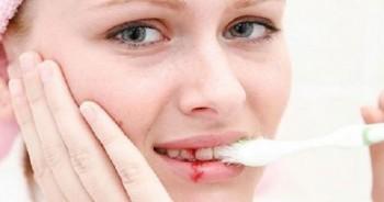 Những kiểu đau đầu báo động bệnh cực kỳ nguy hiểm.