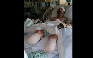 Chỉ vì để chó liếm, một ông ở Wisconsin mất cả 2 chân 2 tay