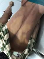 Thêm tin nạn nhân tử vong trong nhà tạm giam Công an huyện
